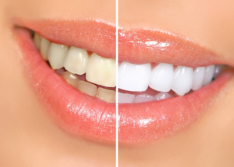 Teeth Whitening Hyde Park, and Poughkeepsie, NY